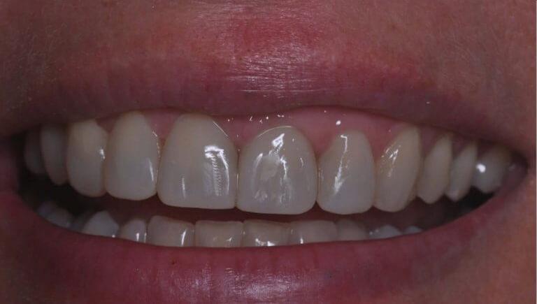 Metamorfoza przednich zębów - zdjęcie po zabiegu stomatologicznym
