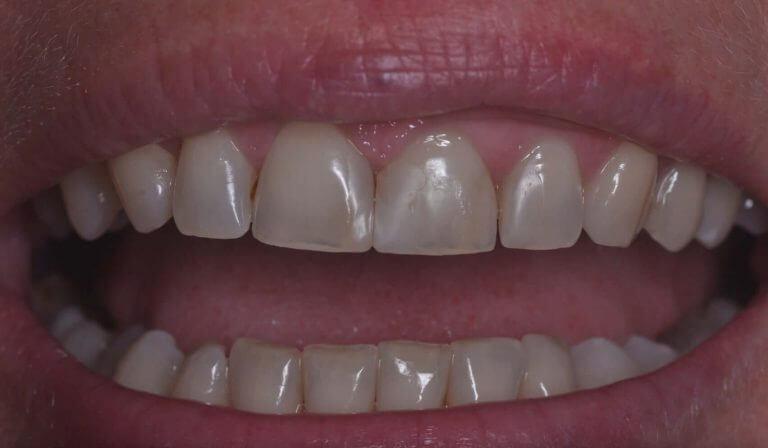 Metamorfoza przednich zębów - zdjęcie przed zabiegiem stomatologicznym