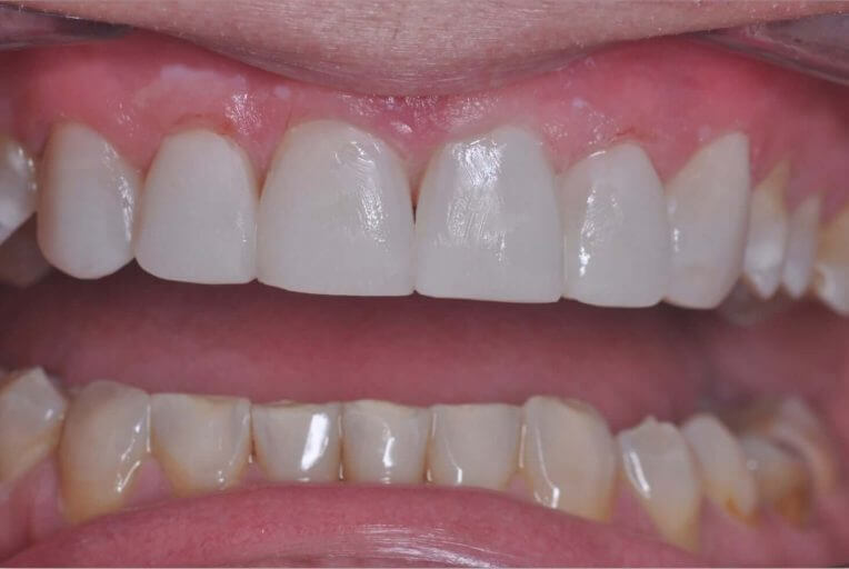 Metamorfoza uzębienia górnego - zdjęcie po zabiegu stomatologicznym