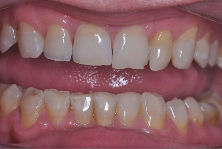 Metamorfoza uzębienia górnego - zdjęcie przed zabiegiem stomatologicznym