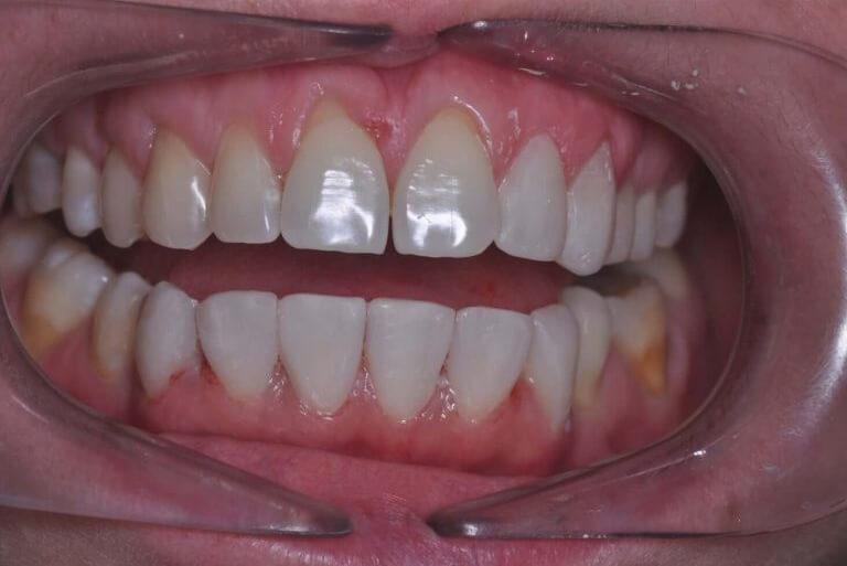 Metamorfoza ogólna - zdjęcie po zabiegu stomatologicznym