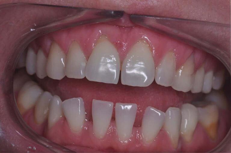 Metamorfoza ogólna - zdjęcie przed zabiegiem stomatologicznym