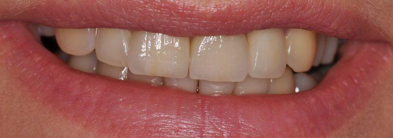 - zdjęcie po zabiegu stomatologicznym