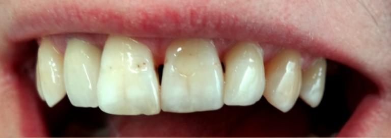 - zdjęcie przed zabiegiem stomatologicznym